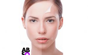 natural-skin-resurfacing-absolu-peal2