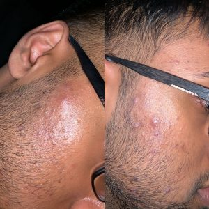 facial-treatment-client-photo-1